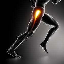 artroza displazică a articulației șoldului