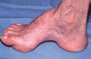 Artropatia Charcot - Tratamentul articulațiilor cu charcot
