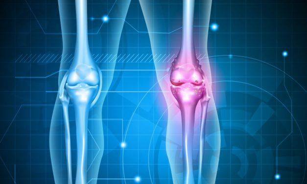loțiuni pentru dureri articulare