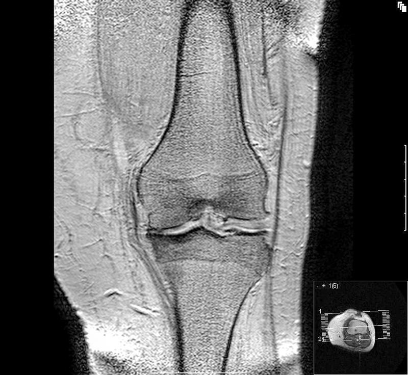 simptom de artroză a gleznei)