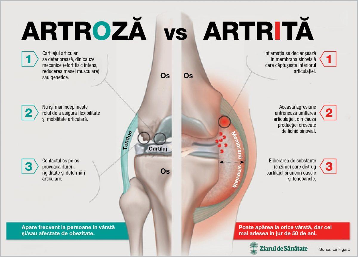 artroza articulațiilor mâinilor