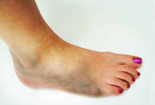articulația genunchiului și a gleznei doare deteriorarea manșetei rotatorului rotativ a articulației umărului