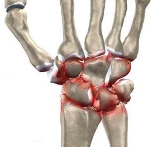 inflamația tendoanelor genunchiului cum să tratezi condroprotectoare pentru articulații și unguente de nouă generație