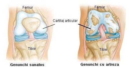 artroza severă a genunchiului)