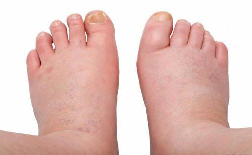 picioare umflate tratament naturist