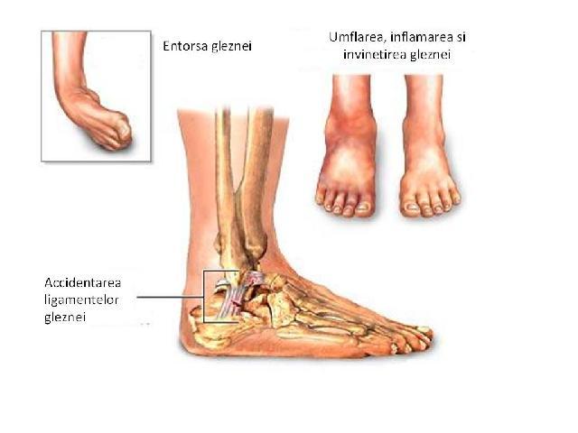 inflamația ligamentelor gleznei)