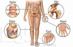Bolile profesionale osteo-musculo-articulare reflectate în artă, medicină, ştiinţă