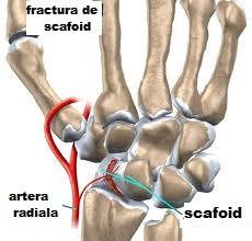 durere articulară scafoidă