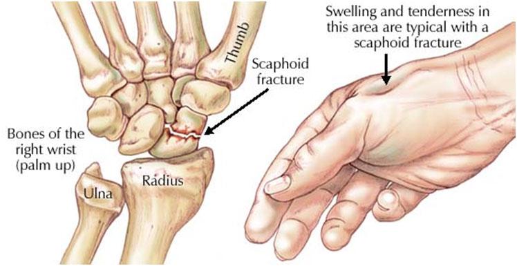 durere articulară scafoidă)