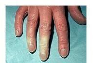 sigidina I. o boală difuză a țesutului conjunctiv face clic pe articulații fără a provoca durere