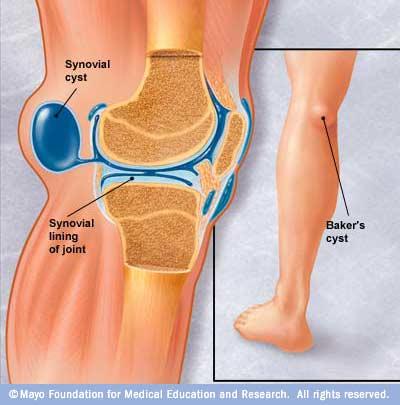 durere în spatele genunchiului)