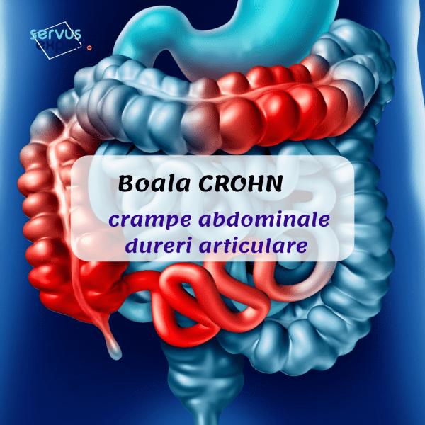 dureri articulare dureri abdominale artroza deformantă a șoldului care s-a vindecat