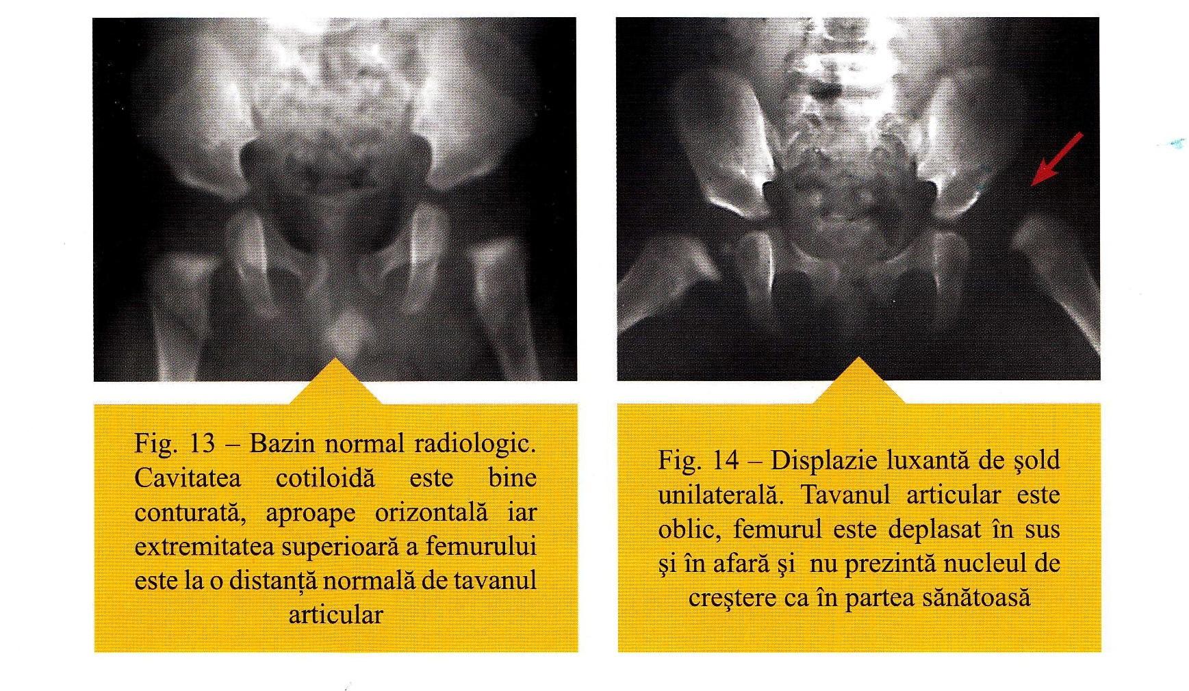 tratamentul displaziei de șold grad 2)