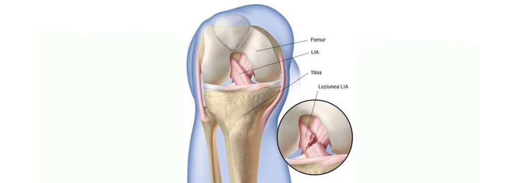 Ruptura de ligament incrucisat anterior - tratament - blumenonline.ro