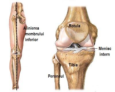 deteriorarea coarnelor posterioare ale meniscului articulației genunchiului)