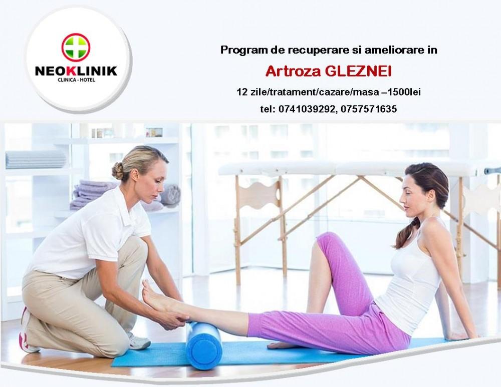 unic în tratamentul artrozei)