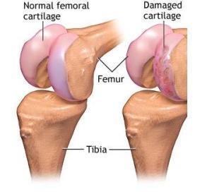 tratamentul articulației genunchilor de cartilaj