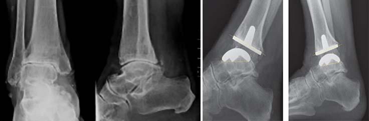 artroza consecințelor articulației gleznei)