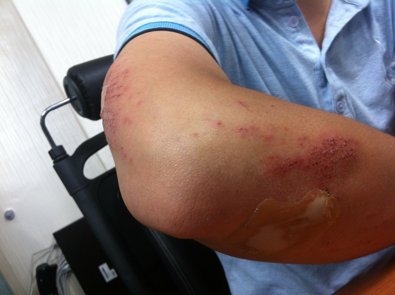 dureri de cot după accidentare)