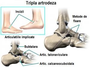 Durere la nivelul articulațiilor gleznei în timp ce rulează