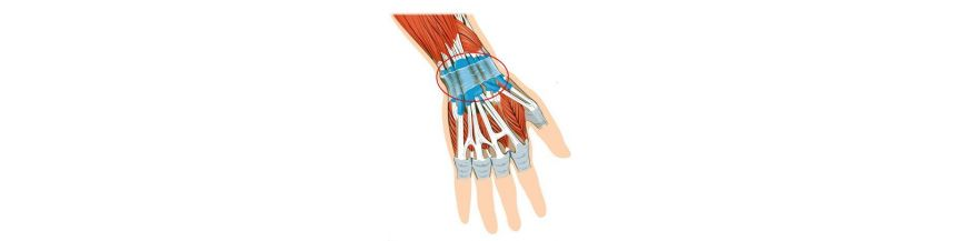 tratament de entorsă la încheietura mâinii)