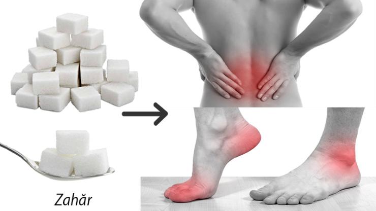 dureri articulare ridicate de zahăr