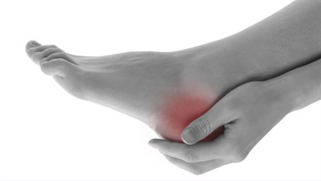 artrita călcâie cum să tratezi
