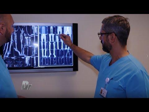 artroza deformantă de primul grad al articulației umărului tratamentul bolilor coloanei vertebrale și articulațiilor din Podolsk