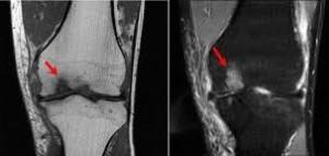 Osteochondroza juvenilă a genunchiului, Cere părerea specialistului!