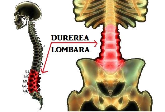 Cum se trateaza durerea lombara