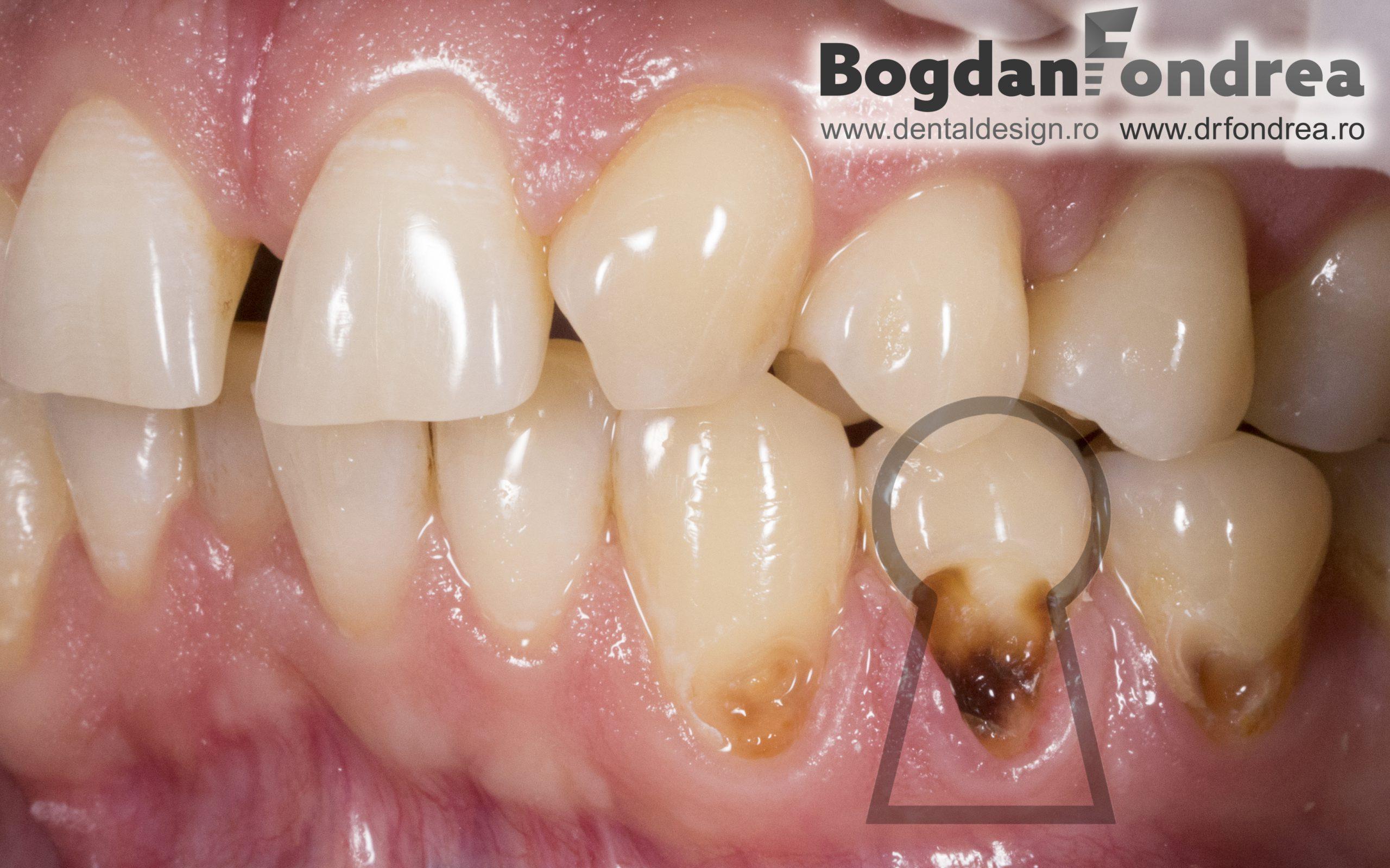 cum se tratează articulațiile gingivale)
