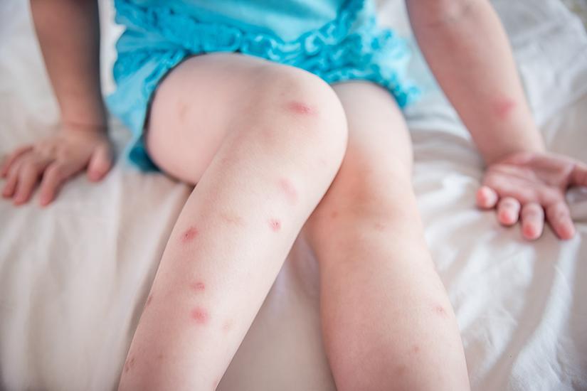 intepatura de albine cu artroza genunchiului