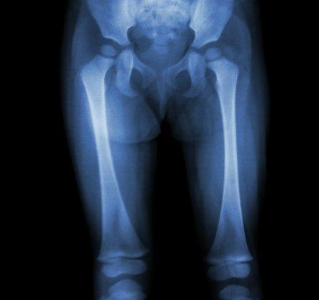 dureri de genunchi la un copil)