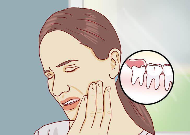 tratament cu perii dureroase și umflate)