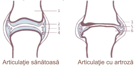 articulațiile șoldului doare când stai durere în articulațiile cotului care medicul