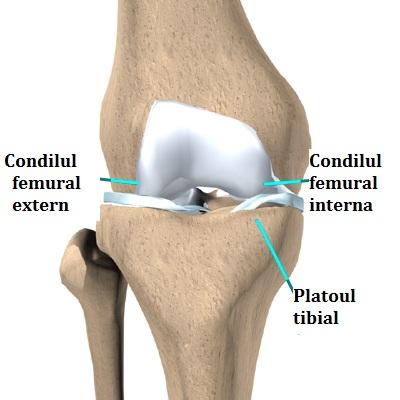 tratamentul fracturilor de condil condil