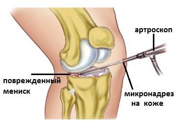 FISURA SI RUPTURA DE MENISC, Deteriorarea meniscului medial al genunchiului 3 grade
