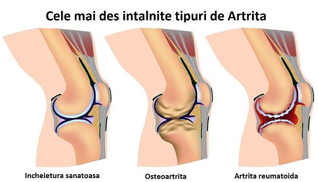 cum să bată artrita la genunchi