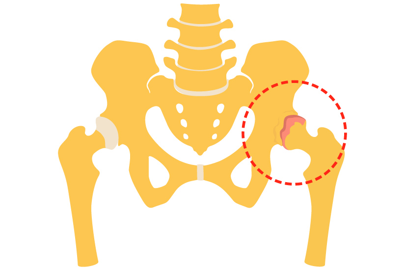 Osteoporoza, boala oaselor fragile: Simptome, tratament, dieta   Bioclinica