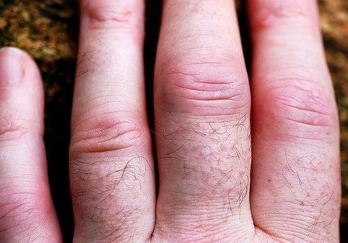 mâinile artrite reumatoide