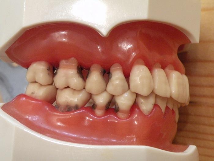 dureri articulare la nivelul gingiilor