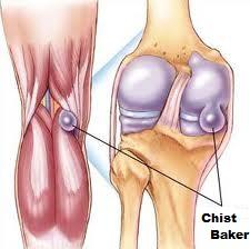 umflatura in spatele genunchiului cauze