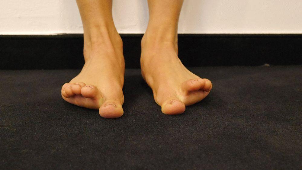 articulații pe picior sub umflături