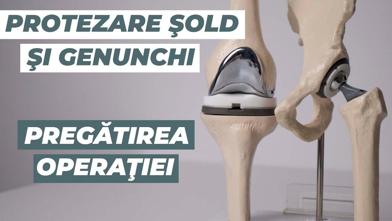 tratament de luxație a șoldului adult dureri de genunchi în homeopatie