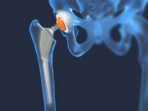 artroza care deformează stadiul articulației șoldului)