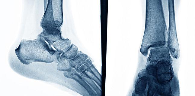 boli ale oaselor și articulațiilor membrelor)