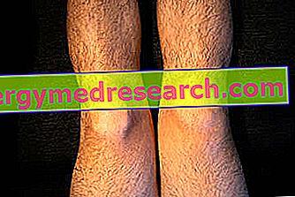 umflarea severă a genunchiului)