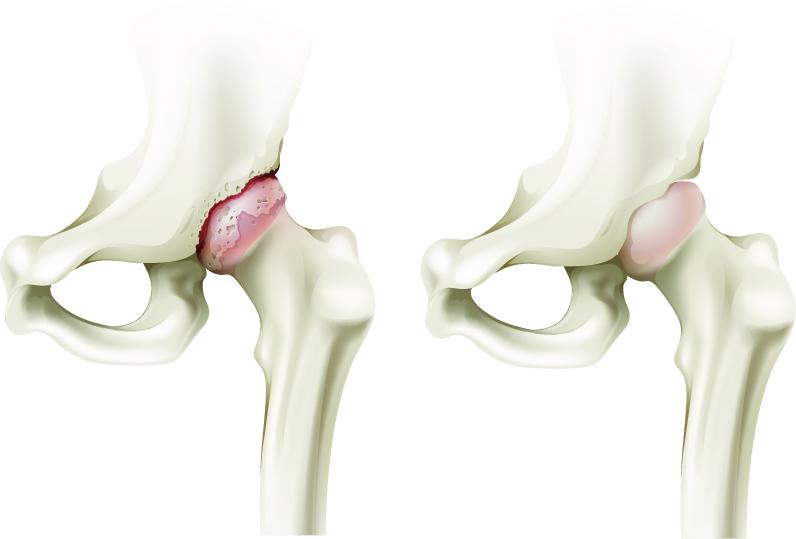 refacerea articulației șoldului după luxație