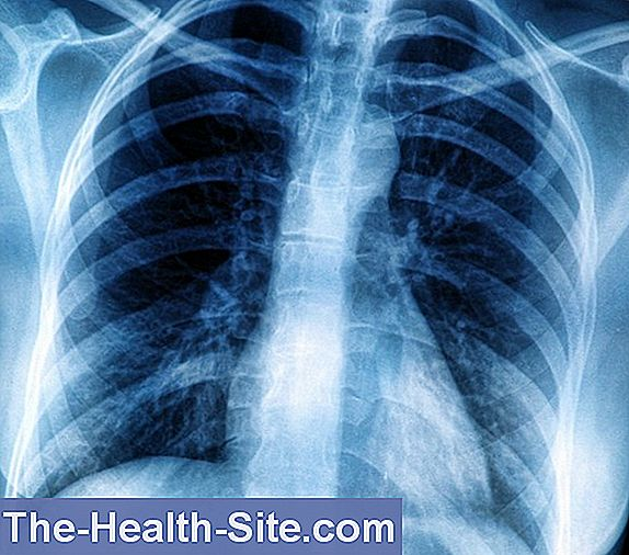 leziuni pulmonare în bolile difuze ale țesutului conjunctiv)