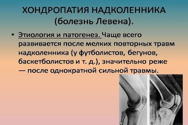 Istoric medical de hemartroză a genunchiului